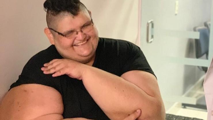 Najgrubszy człowiek na świecie schudł ponad 300 kg